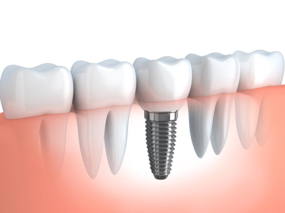 dental implant | jensen beach dental | fl
