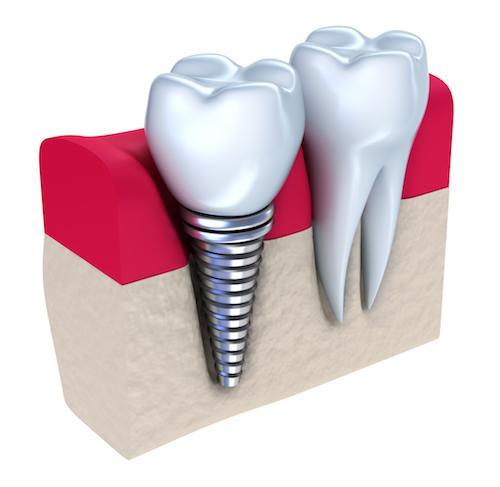 graphic of dental implants in gums