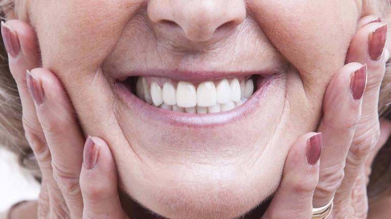 Lady with Dentures | Jensen Beach FL