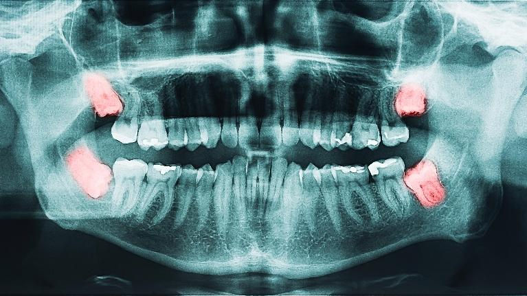 Wisdom Tooth Extractions | Jensen Beach Dental