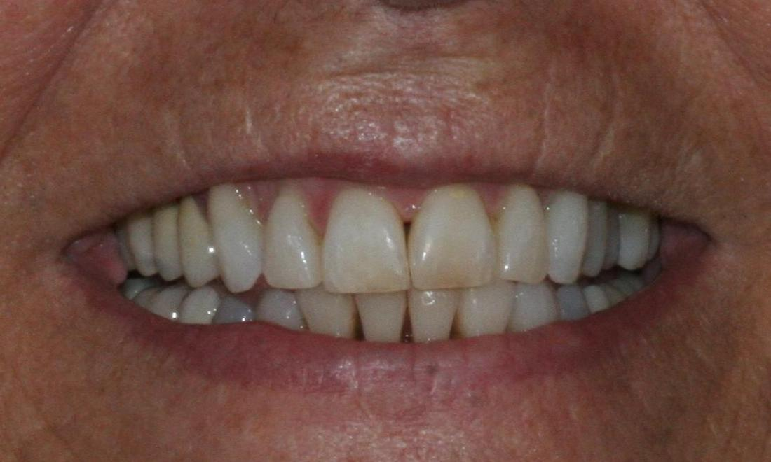 image of the same teeth after treatment with invisalign | Jensen Beach FL