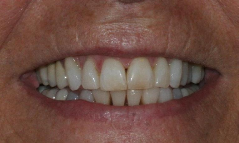 Fixing-Crooked-Teeth-With-Invisalign-After-Image
