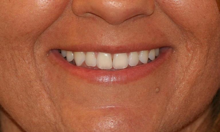 Invisalign-to-Fix-Gap-After-Image