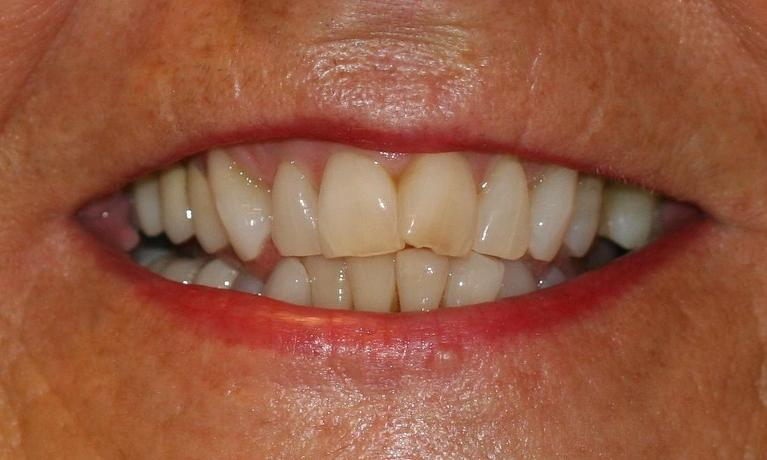 Fixing-Crooked-Teeth-With-Invisalign-Before-Image