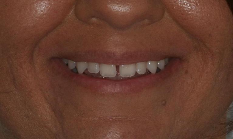Invisalign-to-Fix-Gap-Before-Image